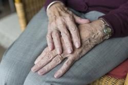 Age, Other Health Factors Can Play a Role in Cancer Treatment Decisions