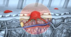 Delayed Surgery Possible With Surveillance in Patients With Sentinel Lymph Node Positive Melanoma