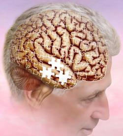 Short-Term Memory Recall Decline in AYA Cancer Survivors May Lead to an Increased Risk of Dementia, Alzheimer's