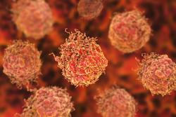 Venclexta With Velcade and Dexamethasone May Improve Progression-Free Survival in Relapsed or Refractory Multiple Myeloma