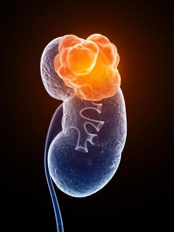 Opdivo-Cabometyx Combo Improves Quality of Life in Kidney Cancer Subtype