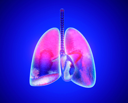 Side Effects of Immunotherapy Now Include Interstitial Lung Disease