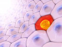 Keytruda Continues to Show Sustained Survival Improvement in High-Risk Skin Cancer
