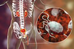 Inside the Shifting Treatment Landscape for Advanced Genitourinary Cancers