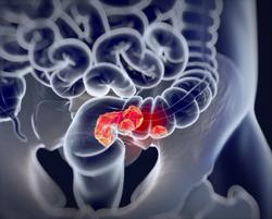 Early-Onset Colorectal Cancer Is Not Distinguishable From Average-Onset CRC