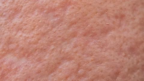 Patients rate acne scar subcision techniques