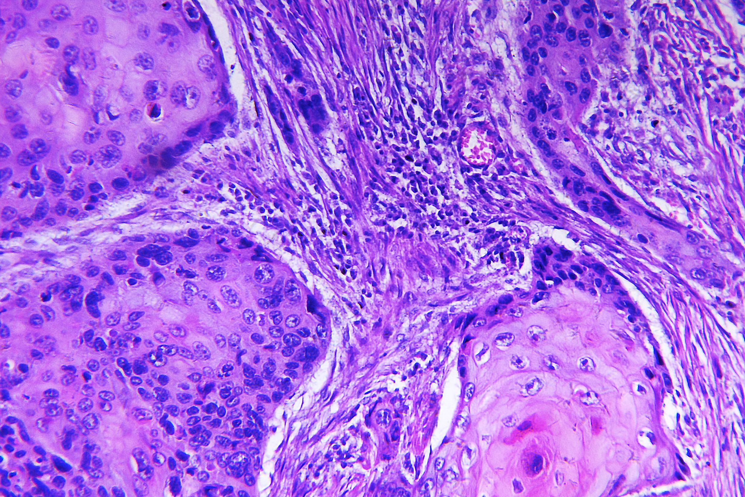 Non Melanoma Skin Cancer Trial Proceeds Dermatology Times And Multimedia Medical Llc