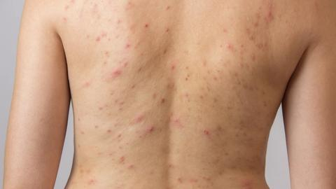 Nonthermal energy shows promise for back acne