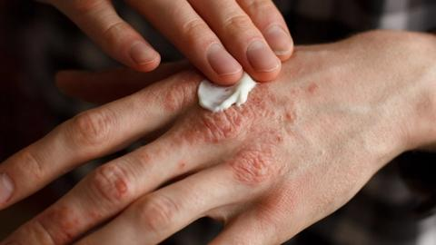 Psoriasis lotion seeks FDA approval
