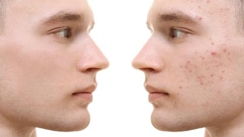 The science behind acne scarring