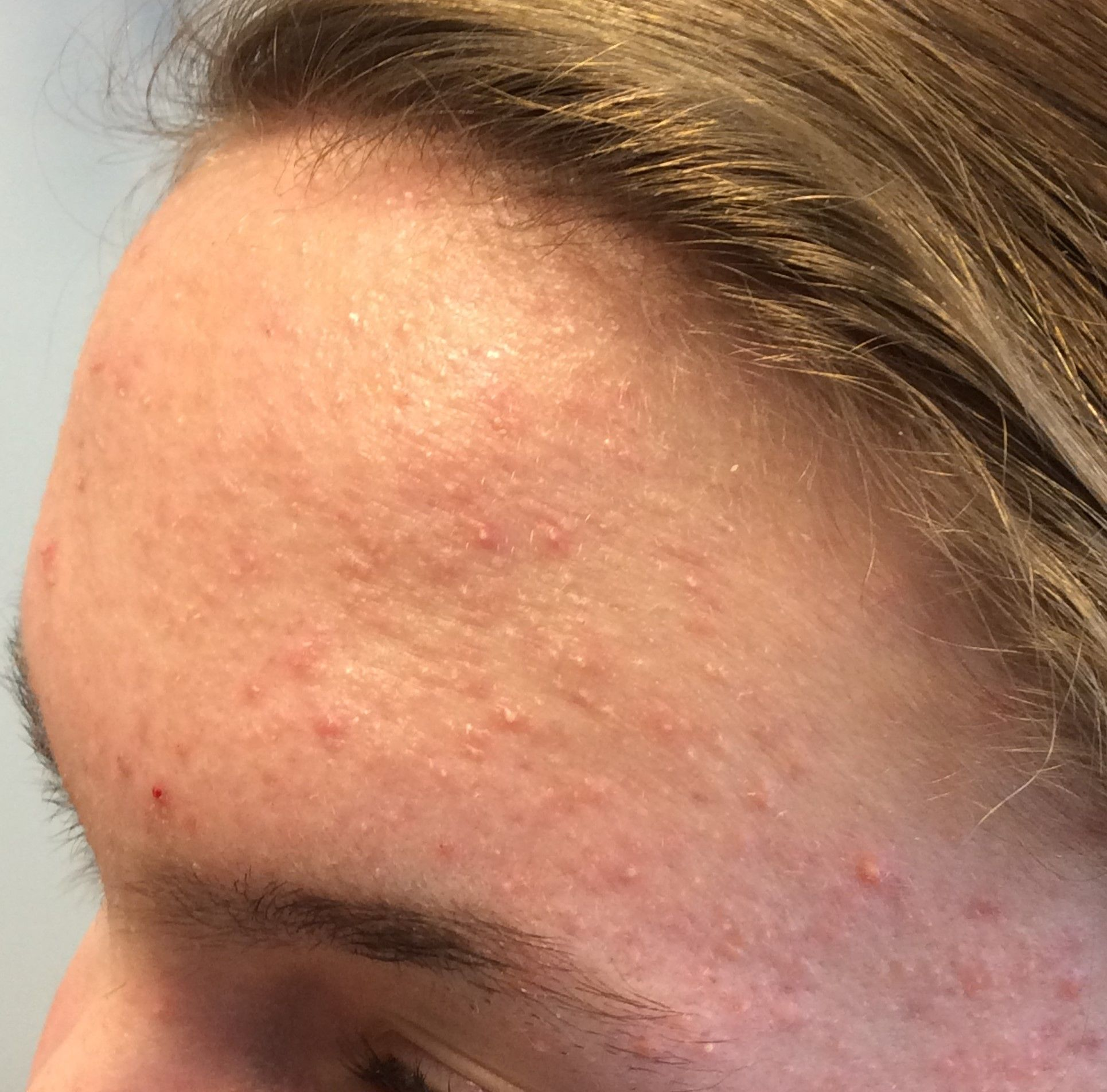 woman's forehead