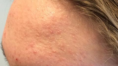 Is it acne or Pityrosporum folliculitis?
