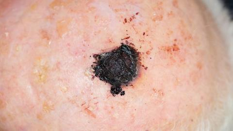 Melanoma therapies and the skin
