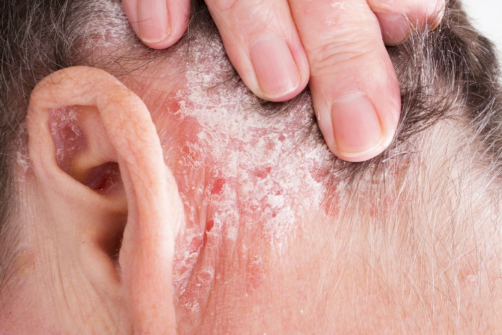 Is Thyroid Endocrinopathy Associated With Psoriasis Dermatology