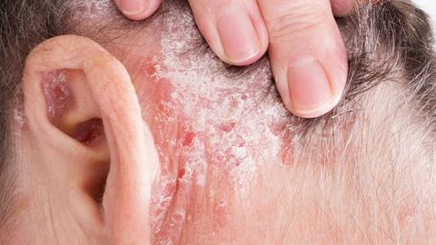 High efficacy shown in self-inject psoriasis biologic