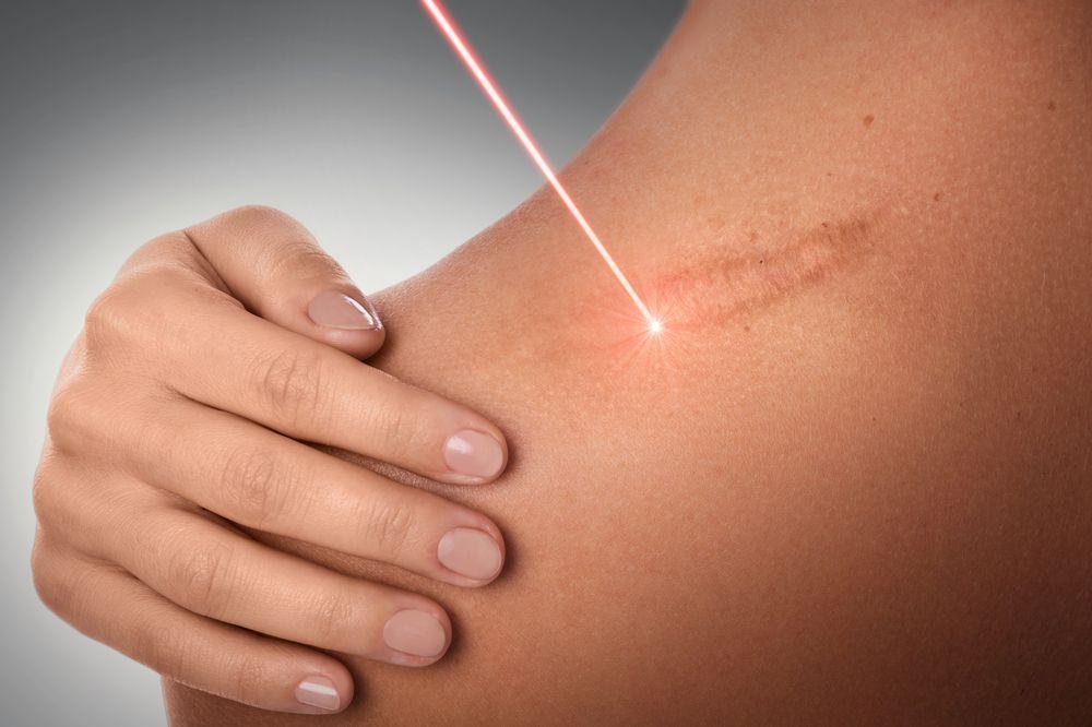 photo for dermatology