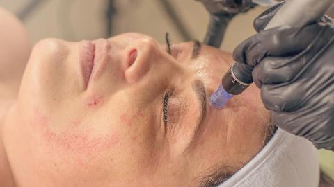Microneedling improves acne scars, hyperpigmentation in skin of color