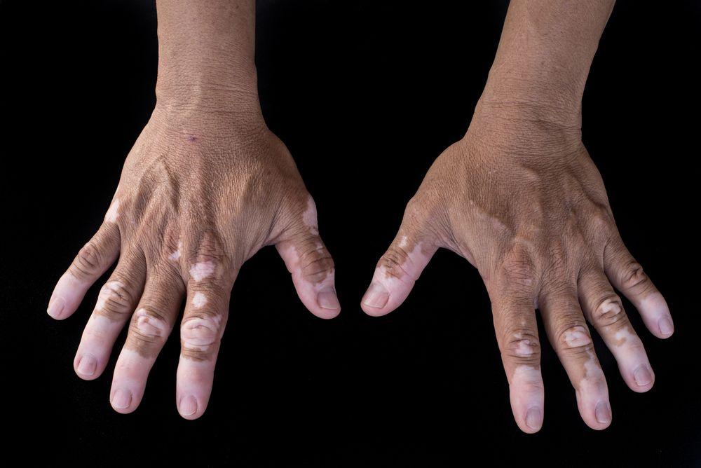 A Basic Primer On Vitiligo