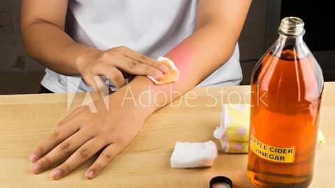Don't use vinegar to treat atopic dermatitis