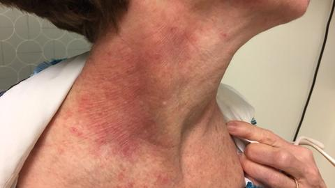 Dermatologist shares lessons learned from difficult-to-treat atopic dermatitis case