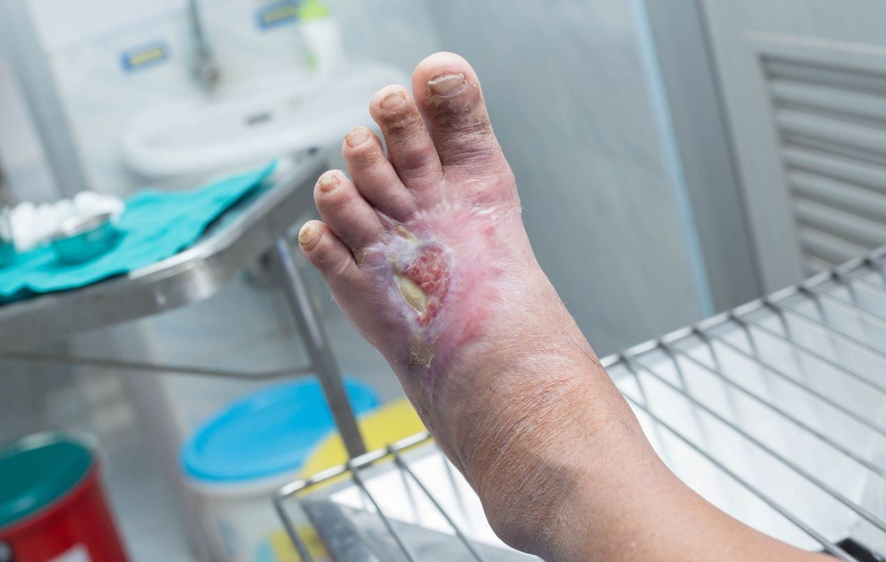 Caring For The Diabetic Foot Dermatology Times And Multimedia