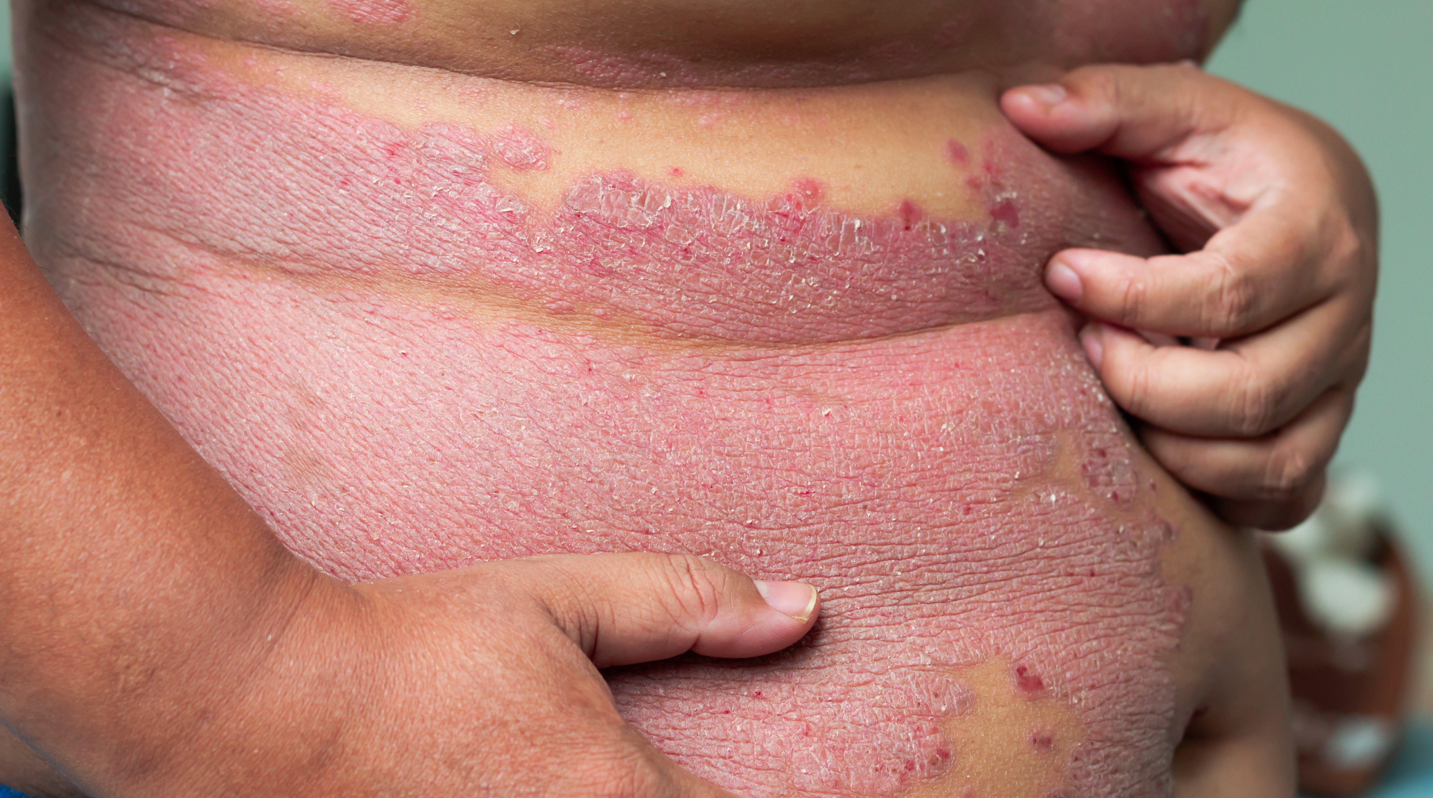 psoriasis skin disease cause