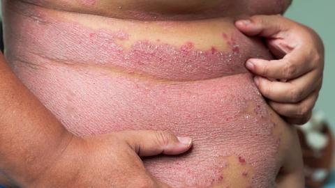 Consider more than severity, spread in psoriasis