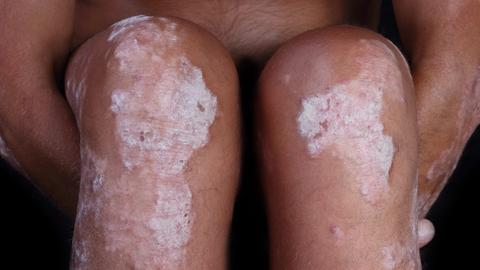 Leg psoriasis improves with topical lotion