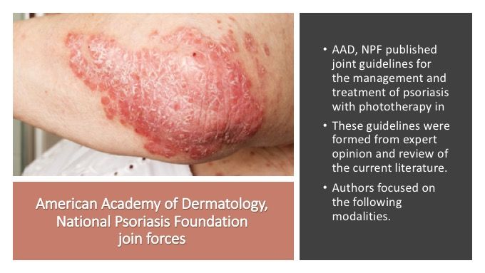 American Academy of Dermatology, National Psoriasis Foundation join forces