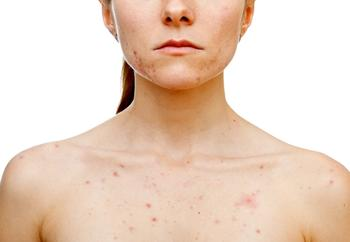 2021 Acne Updates: New Drugs and Research