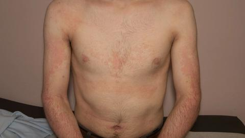 Clinical trials report: Tralokinumab for atopic dermatitis