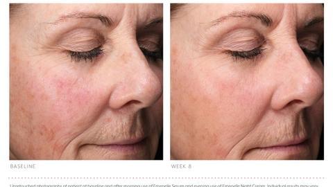 A solution for estrogen-deficient skin