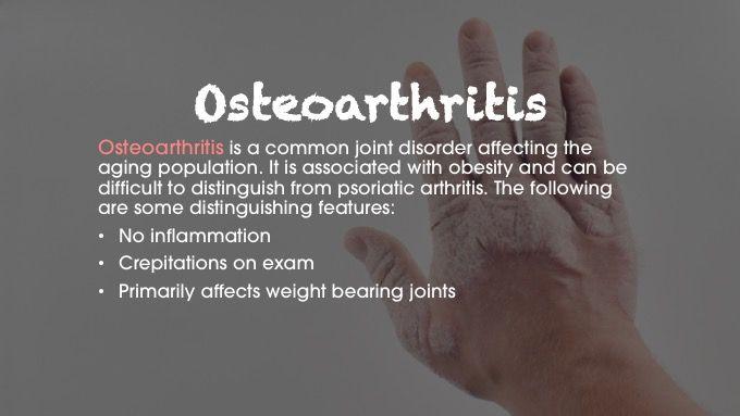 Osteoarthritis psoriatic arthritis differential diagnosis