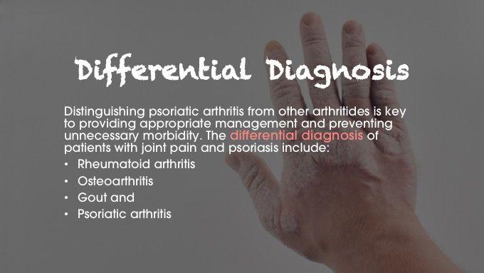 psoriatic arthritis differential diagnosis