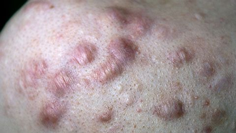 Combination therapies improve keloid treatment