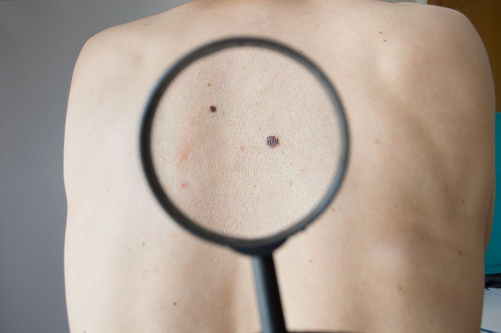 mole on back magnifying glass