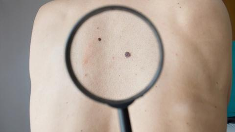 Genetic expression testing still a work in progress for melanoma