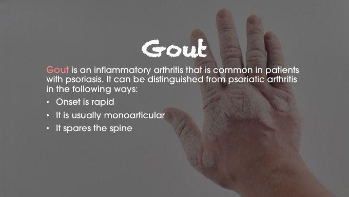 gout psoriatic arthritis differential diagnosis