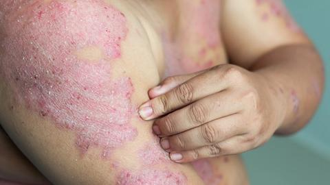 Meta-analysis points to most effective biologics for psoriasis