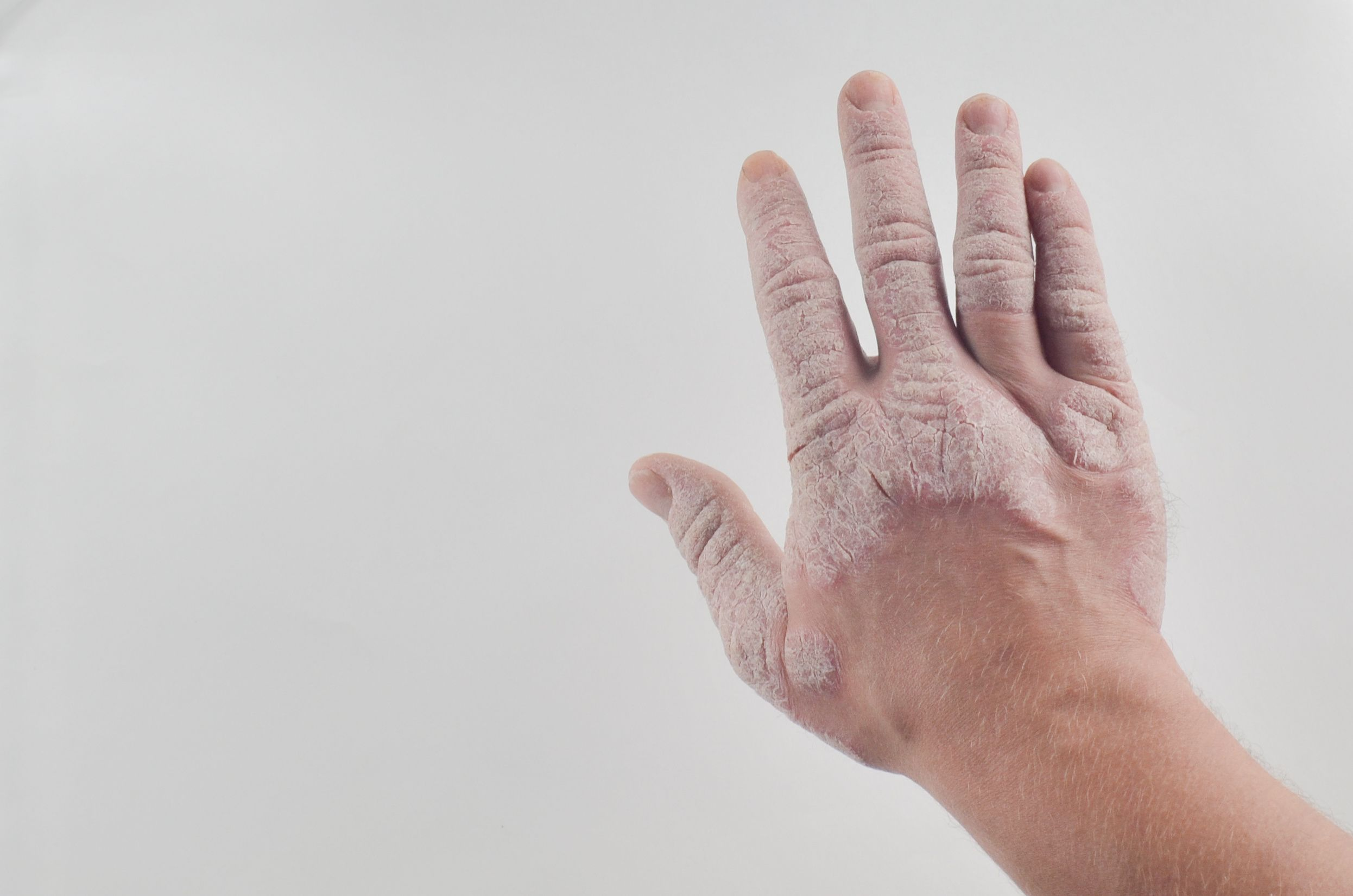Ultrasound Lends A Hand In Assessing Inflammation In Psoriatic Arthritis