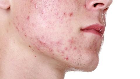 Pipeline treatments show promise for acne patients