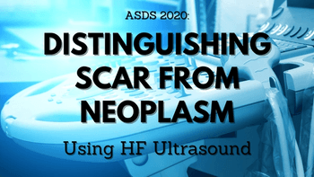 Distinguishing scar from neoplasm using HF ultrasound