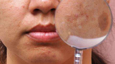 New treatments and approaches in melasma