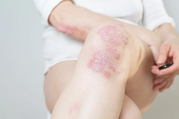 Otezla Phase 3 ADVANCE Trial Reports Improvement in Plaque Psoriasis Severity