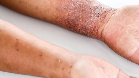 Combined atopic dermatitis treatment shows promise