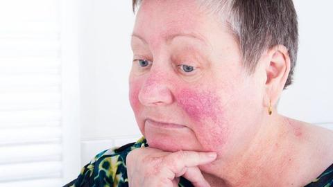 New treatments help improve rosacea management
