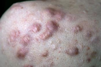 Laser Therapy for Scars and Keloids