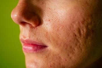 3D imaging technique measures severity of atrophic acne scars