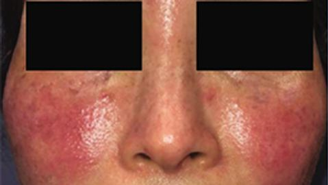 IL-17 inhibition a path of interest in rosacea treatment
