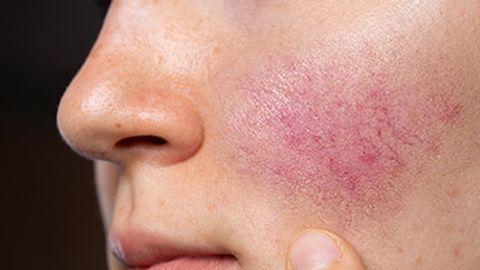 Specialized skincare regimen improves rosacea symptoms